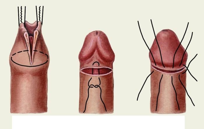 Крайня плоть опухла: всі можливі причини