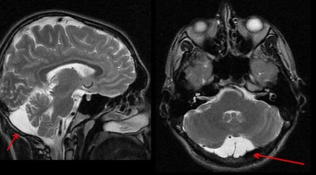 ретроцеребеллярная ликворная киста головного мозга