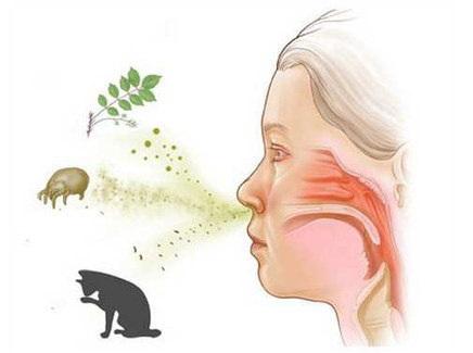 Аллергический ринит чаще всего проявляется сезонно