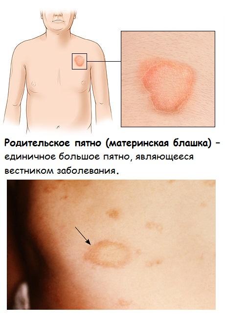 Симптомы розового лишая