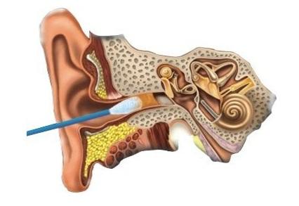 Основная причина пробок в ухе