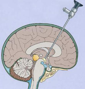 водянки головного мозга новорожденных