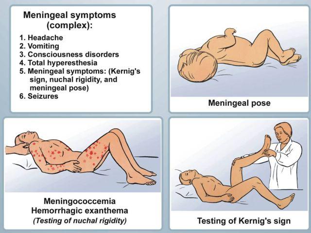 менингиальные симптомы