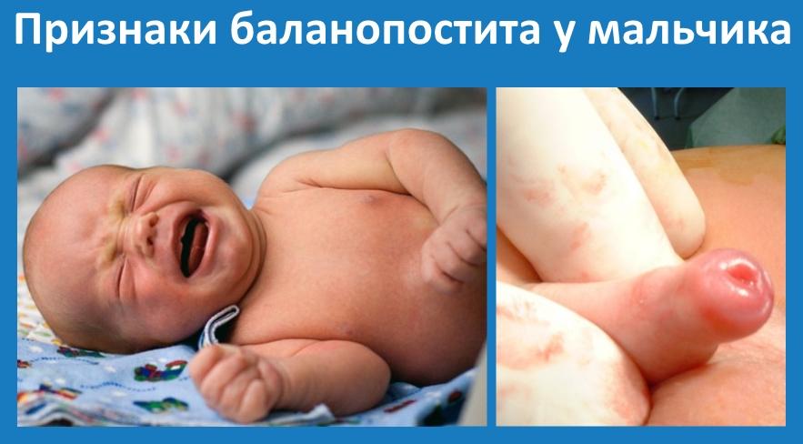 Баланопостит у дитини: причини, діагностика та лікування