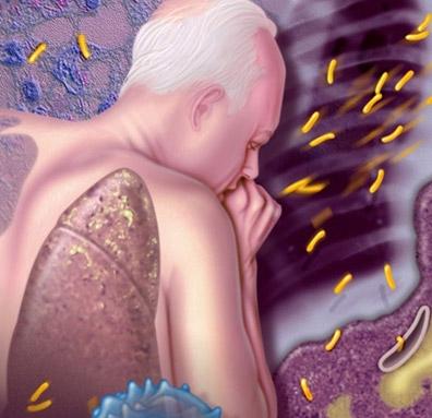 основной симптом туберкулеза легких - кашель