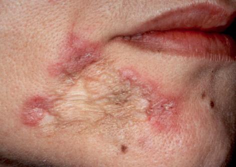 последствия Lupus vulgaris