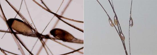 гниды головных вшей (фото)