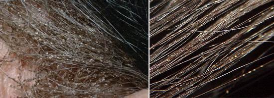 вши и гниды на волосах (фото)