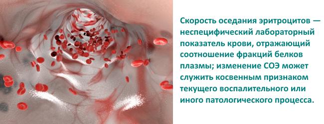skorost-osedaniya-eritrocitov-soe