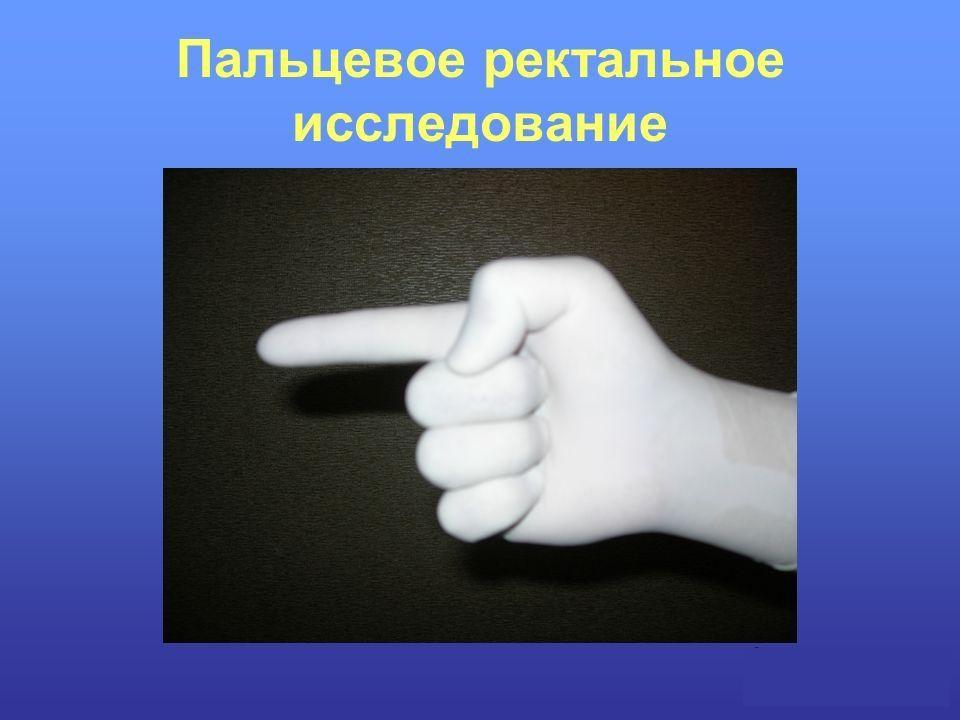 Що таке пальцеве дослідження передміхурової залози