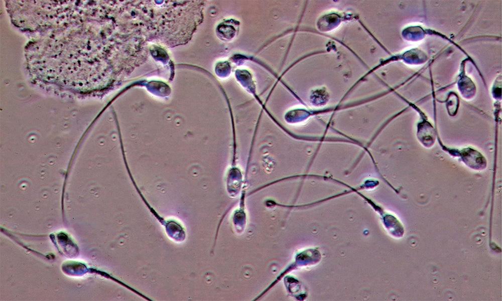 Спермограма визначає причини безпліддя та інших захворювань у чоловіків