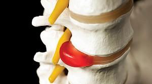 spine-02[1]