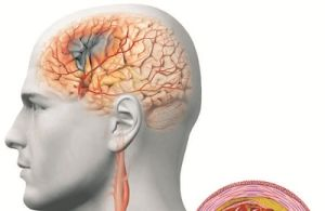 сосудистый генез головного мозга