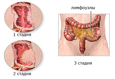 стадии рака кишечника фото