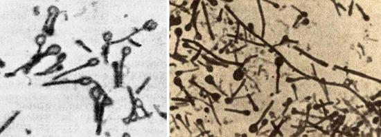 терминальные эндоспоры Clostridium tetani
