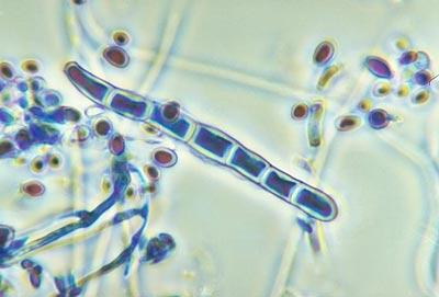 trichophyton rubrum - грибок