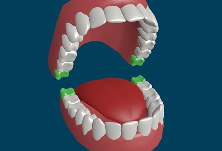 Одним из вариантов может быть даже зуб мудрости