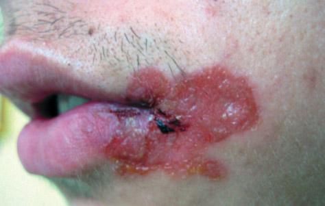 буллезное импетиго кожи лица