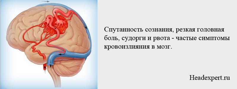 Частые симптомы кровоизлияния в мозг - судорги, рвота, спутанность сознания