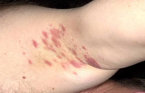Кандидоз крупных складок кожи (дрожжевая опрелость)