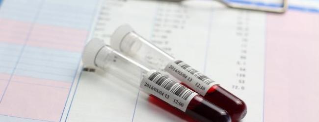 tiroksinsvyazyvayushhij-globulin