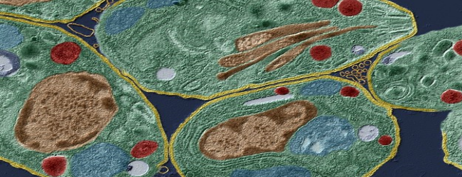 toksoplazma-antitela-klassa-igg