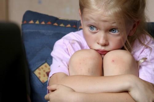Нервовий тик у дітей