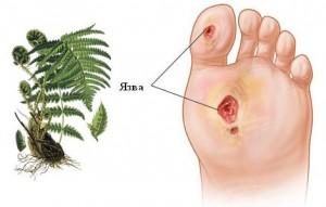 Трофические язвы на ногах