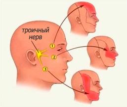 Невралгія трійчастого нерва