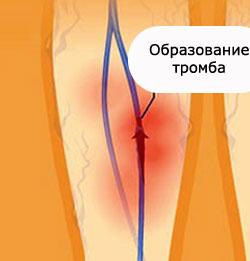 Диагностика тромбофлебита