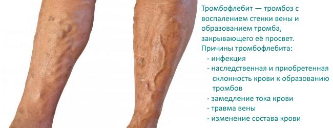tromboflebit-septicheskij