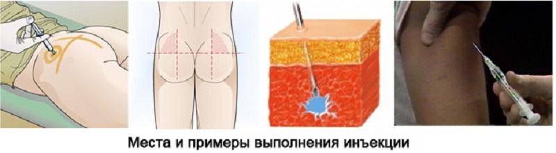 Лидаза при простатиті: особливості застосування та лікувальні властивості