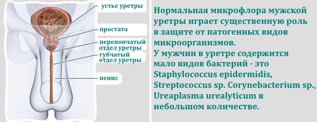 uretrit-u-muzhchin