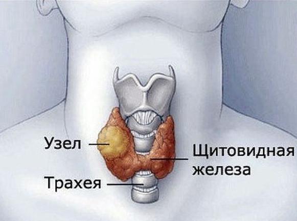 Узел в щитовидной железе