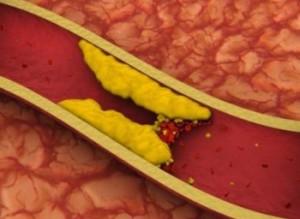 в каких продуктах содержится холестерин