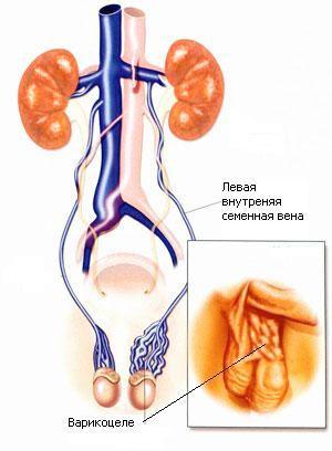 Мікрохірургічна операція варикоцеле: як проводиться
