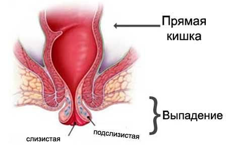 Лечение выпадения прямой кишки