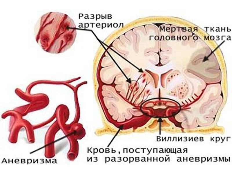 Як куріння впливає на мозок людини