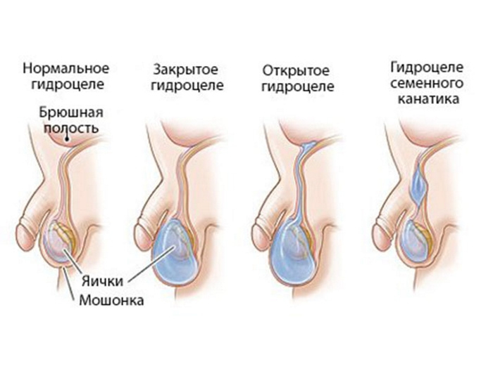 Водянка яєчка у чоловіків: основні ознаки
