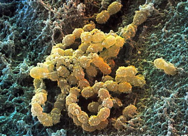 Возбудитель скарлатины - стрептококк