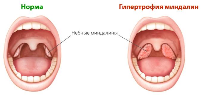 Внешний вид миндалин