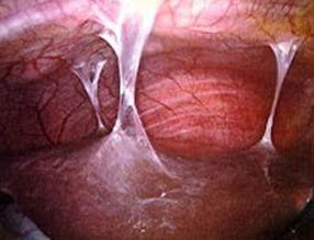 спайки в малом тазу при хламидиозе у женщин