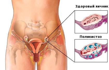 Поликистоз и здоровые яички