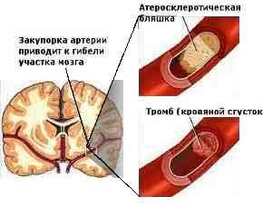 Закупорка сосуда тромбом и атеросклеротической бляшкой