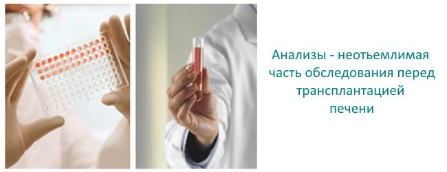znachenie-analizov-v-transplantacii-pecheni